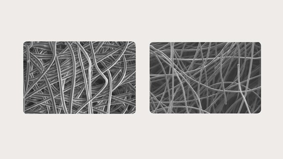 Exufiber vs Aquacel fiber dressings under a microscope