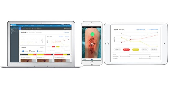 Devices with tissue analytics screenshots
