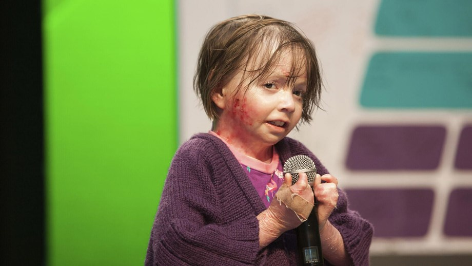 a little girl affected by epidermolysis bullosa (EB)