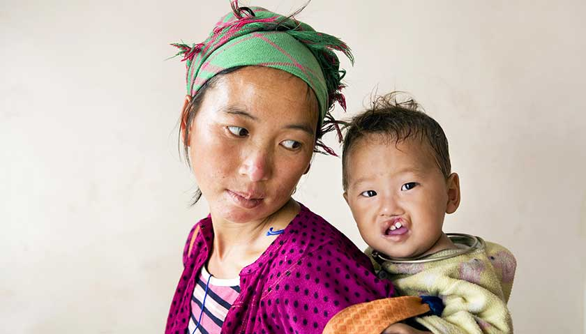 a mother carrying her child affected by cleft lip